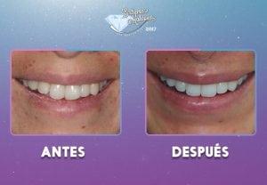 dientes1-(1)