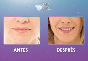 labios-(1)