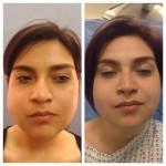 Extreme MakeOver Abel de la Peña