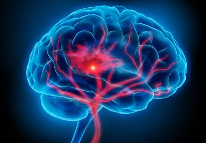 Qué pasa con el cerebro WP