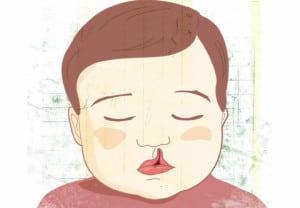 Como-corregir-el-labio-y-paladar-hendido
