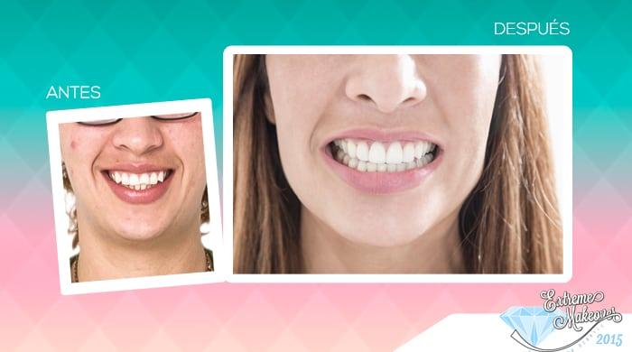 Galeria-dientes1
