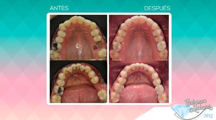 Galeria-dientes3