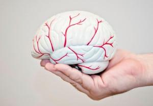 Infartos-cerebrales