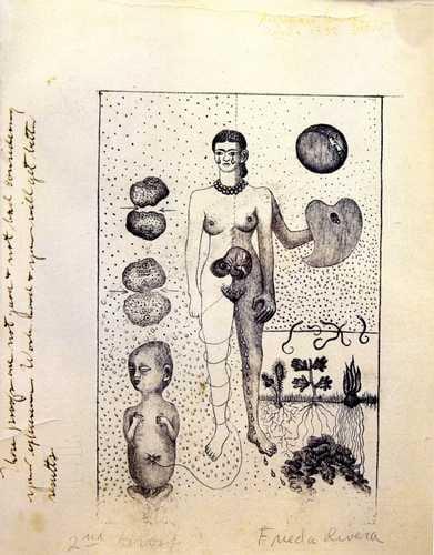 Imagen 7- El aborto 1932