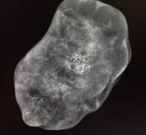 biopsia3