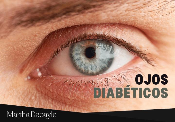 ojos-diabéticos