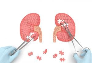 Kidneys operation puzzle concept: hands of surgeon with surgical instruments (tools) performs kidney surgery as a result of renal failure (nephrism), urinary stone disease, urosepsis, kidney cyst