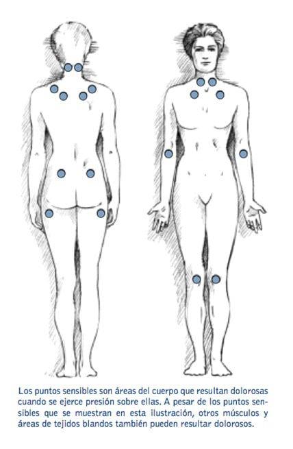 test fibromalgia
