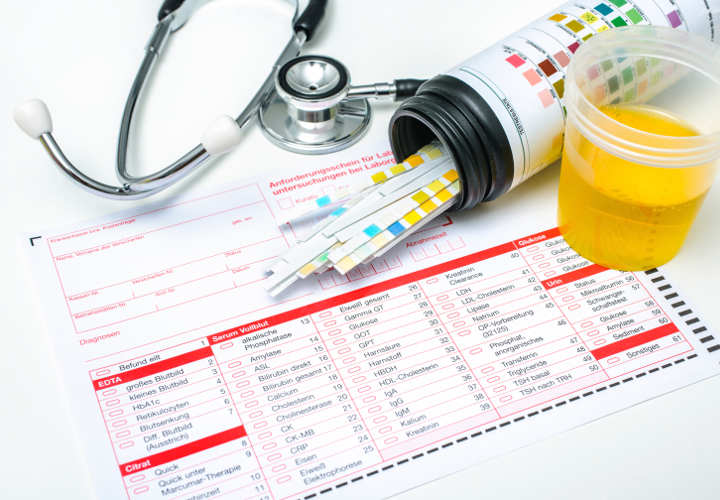 Check-up, Medical report and urine test strips