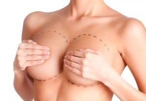 Tits correction. Plastic surgery, isolated, white background