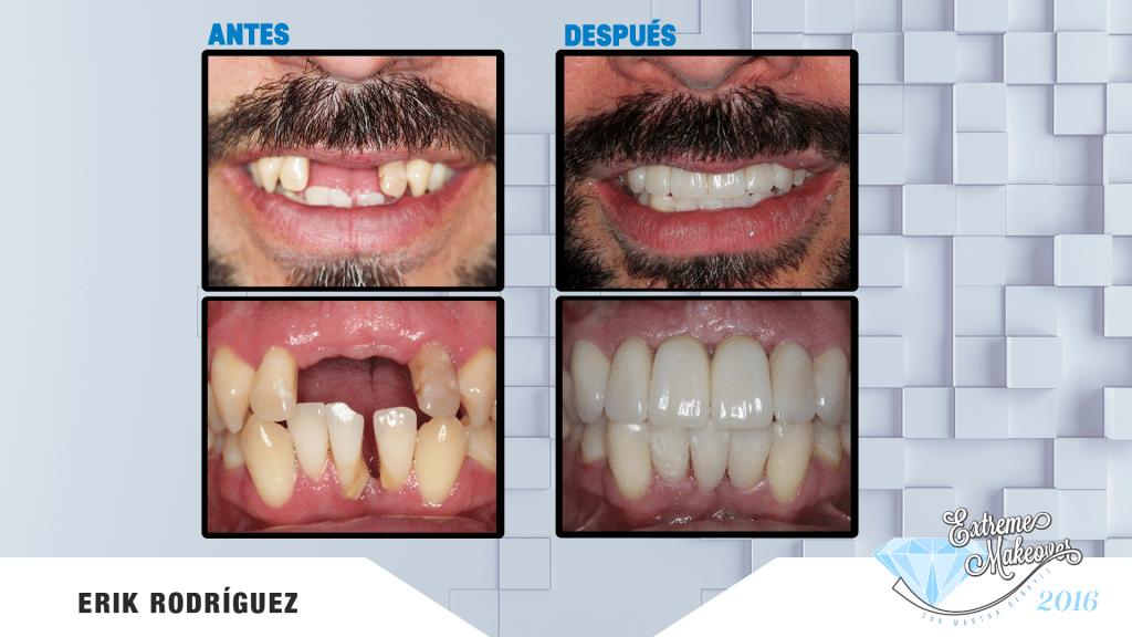dientes-el