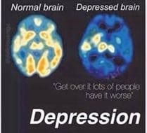 trastornos 4