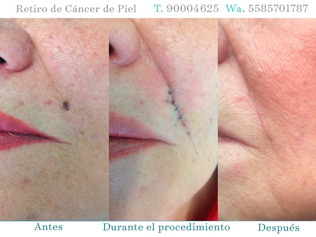 CÁNCER DE PIEL BEFORE AND AFTER