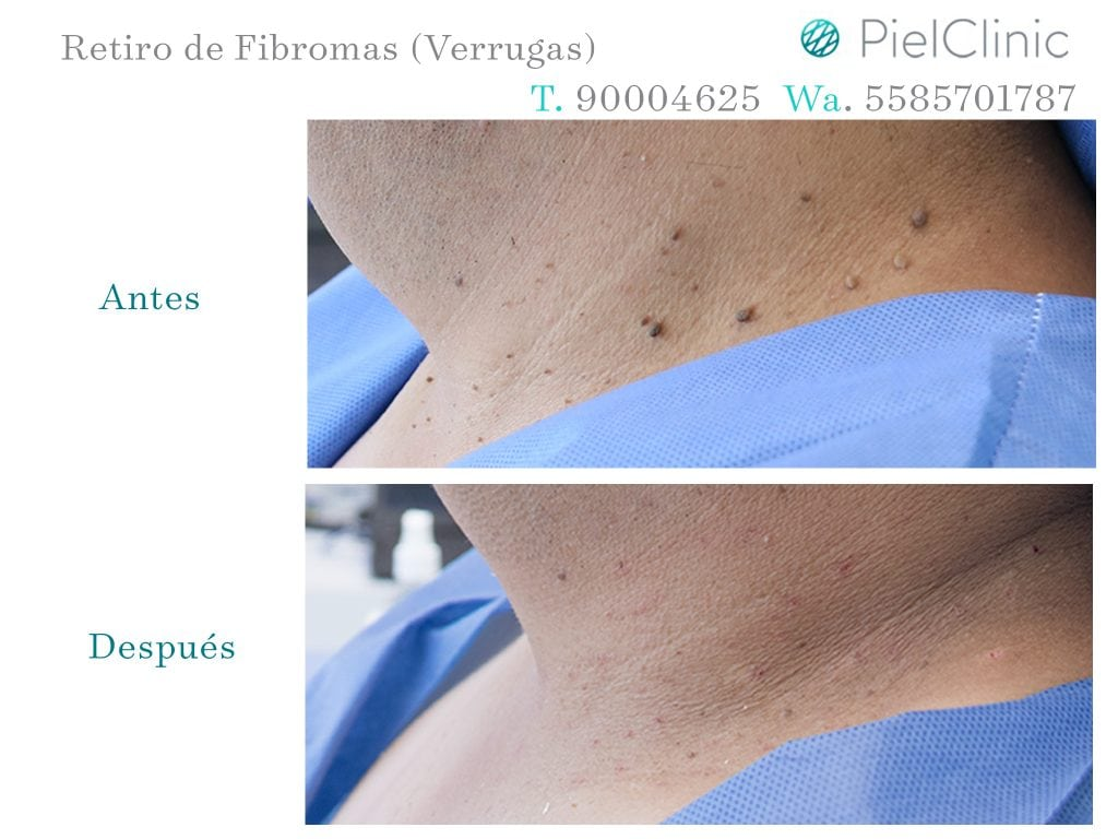 FIBROMAS BEFORE AND AFTER