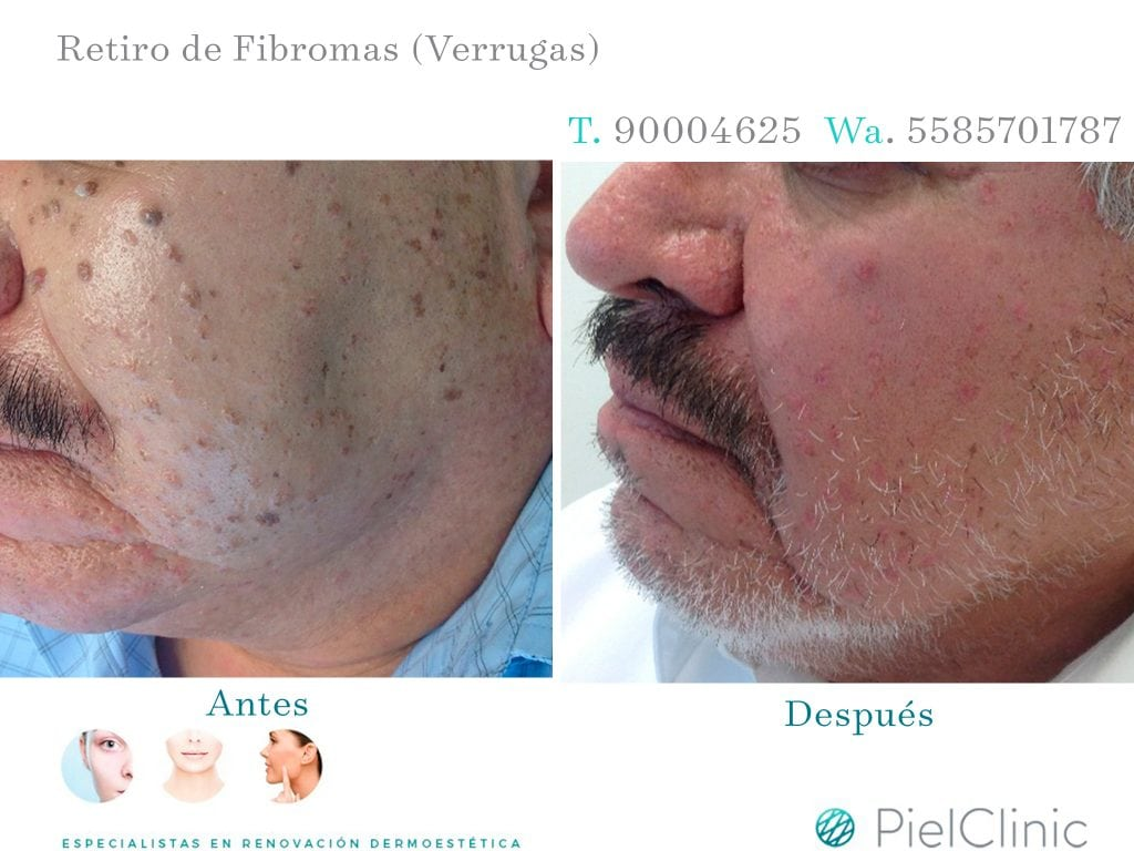 FIBROMAS BEFORE AND AFTER 2