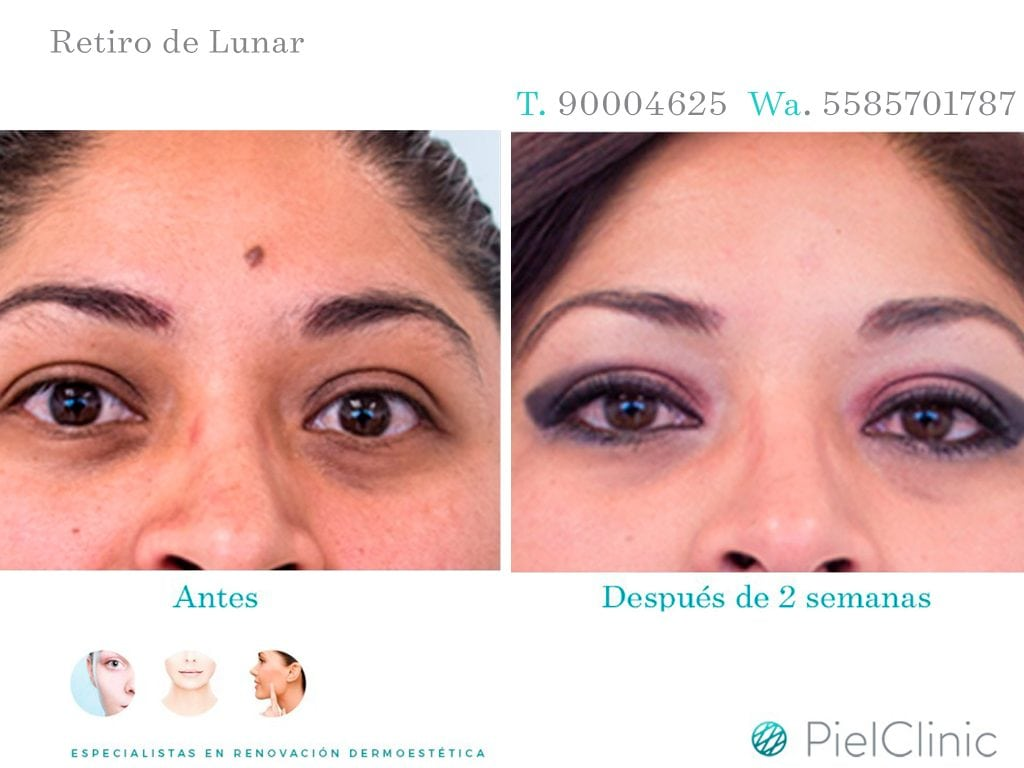 RETIRO DE LUNAR BEFORE AND AFTER